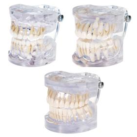透明歯列模型