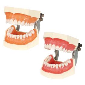 機能的顎模型