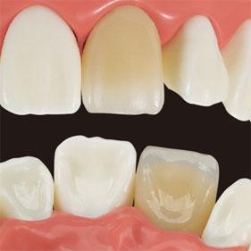 FEED デモンストレーションモデル ジルコニア 単冠・前歯