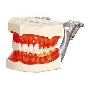 歯周病説明用顎模型