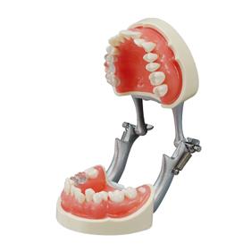 歯磨き指導用顎模型