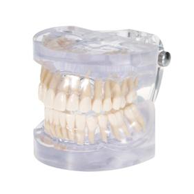 透明歯列発育模型