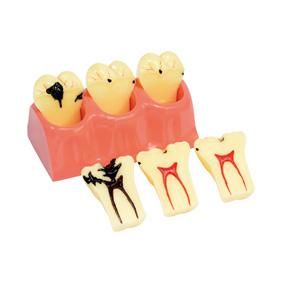カリエス臼歯用モデル