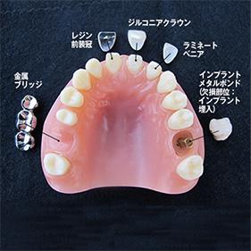 リアルモデルB 前歯+インプラント・ブリッジ 保険・自費比較