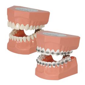 歯磨き指導顎模型